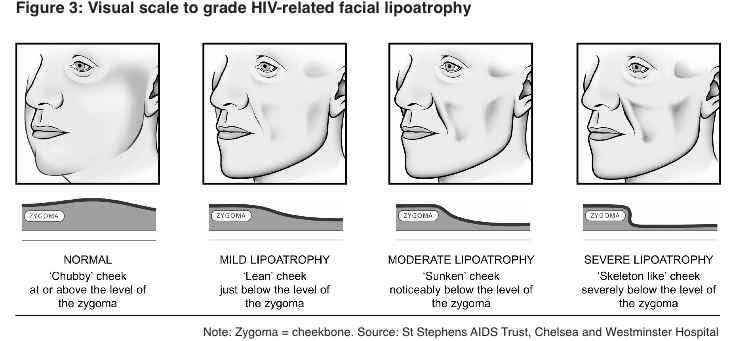 Visual lipoatrophy scale